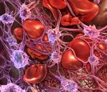 Atypical Hemolytic Uremic Syndrome