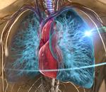 RapidArc® Lung Cancer Treatment
