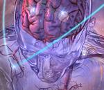 SBRT Treatment of Multiple Mets in the Brain