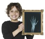 Psoriatic Arthritis X-ray Illustrations for Enbrel™