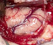 Front Craniotomy Procedure to Remove a Meningioma Brain Tumor