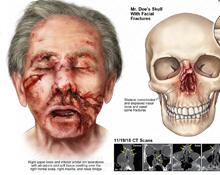 John Doe's Traumatic Facial Injuries