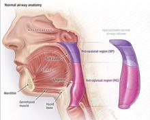 Anatomic Features Contributing to Obstructive Sleep Apnea
