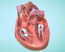 Cardiac Rehab Explorer