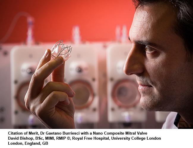 Dr-Gaetano-Burriesci-nano-composite-mitral-valve