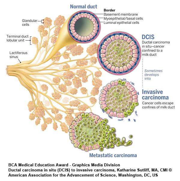 Citation of Merit Ductal_Carcinoma_in_Situ_DCIS
