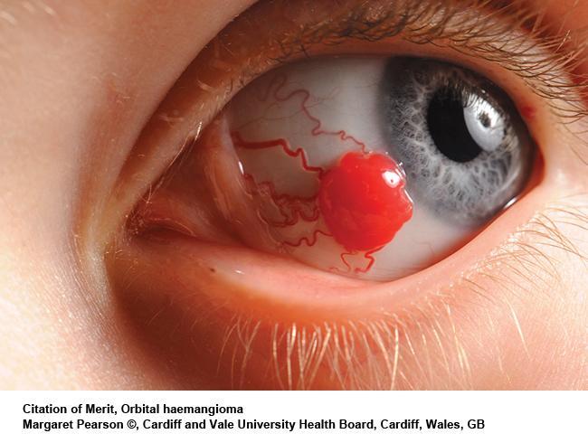 Orbital-haemangioma