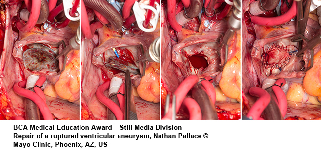 Citation of Merit Repair-of-a-ruptured-ventricular-aneurysm