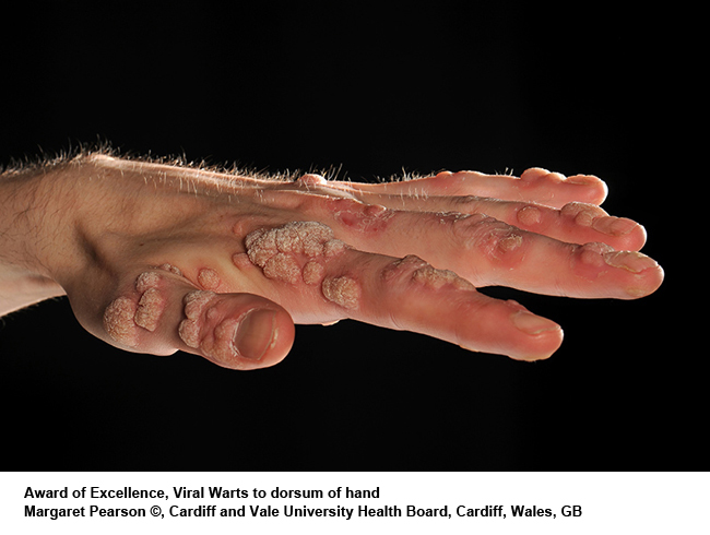 Viral-Warts-to-dorsum-of-hand
