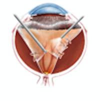 Traction Retinal Detachment Repair