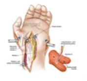 Serratus Muscle Graft for Thumb