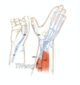 Flexor Tendon Transplant