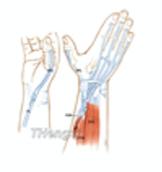 Flexor Tendon Transplant