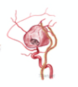 Middle Cerebral Artery Aneurysm Repair