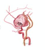 Middle Cerebral Artery Aneurysm Repair