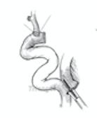 Laparoscopy Procedure