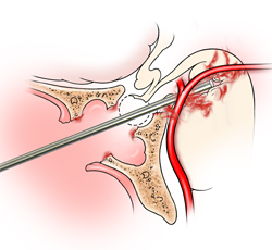 Vascular Injury During Endoscopic Sinus Surgery