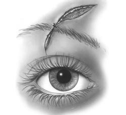 Eyebrow Laceration