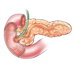 Pancreas with Inflammed Sphincter of Oddi and Swollen Duct
