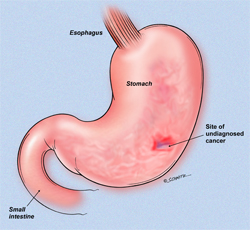 Location of Stomach Cancer