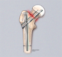 Femoral Neck Fracture Fixation
