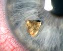 Penetrating injury Metal FB in iris