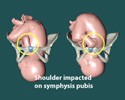 Animation of Shoulder Dystocia