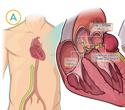 Aortic Valve No Exchange Catheter (AVNEC)