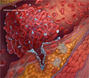 Myocardial Infarction: The Role of Anti-Platelet Aggregation Treatment