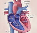 Cardiac Anatomy of 22-Month-Old Conjoined Twins