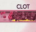 Cholesterol: Good and Bad