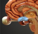 Gamma Knife: Radiated Optic Tract & Hypothalamus