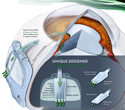 Ahmed Glaucoma Valve: Concept for Trade Show Booth Display