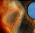 Pterygium with an associated conjunctival cyst