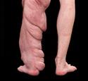 Plexiform Neurofibroma